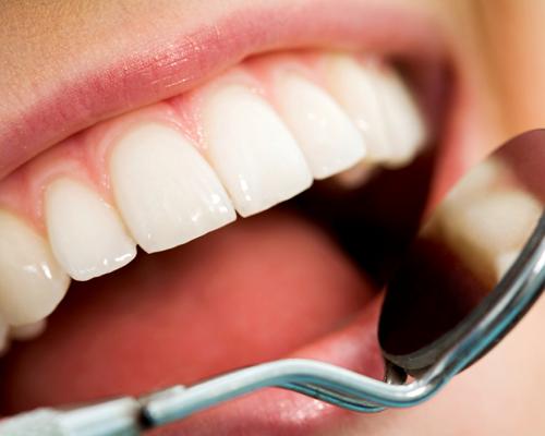 Dentaloperationer